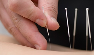 7 Reasons You Should Try Acupuncture