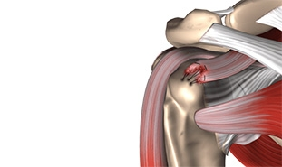 Advances in Arthroscopic Rotator Cuff Repair