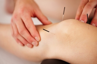 Experiencing Pain? Try Acupuncture