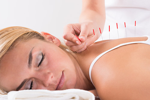 Acupuncture  Benefits - Helping  Post - Surgery Recovery