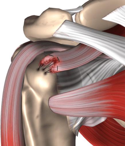 Advances in Arthroscopic Rotator Cuff Repair