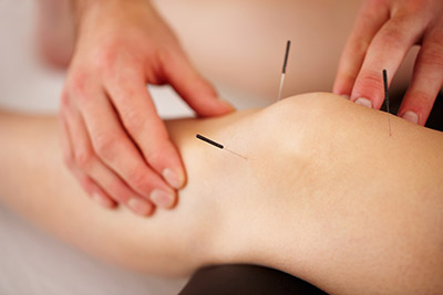 Find Healing in the New Year Through Acupuncture