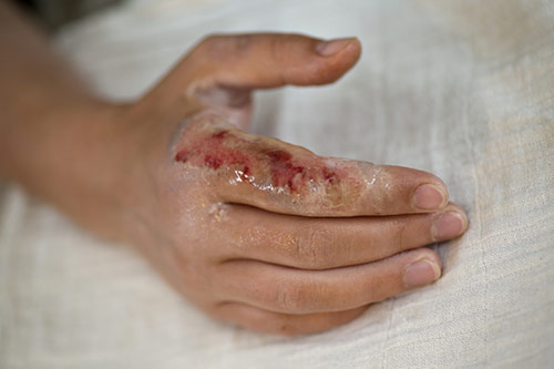 What is wound care?